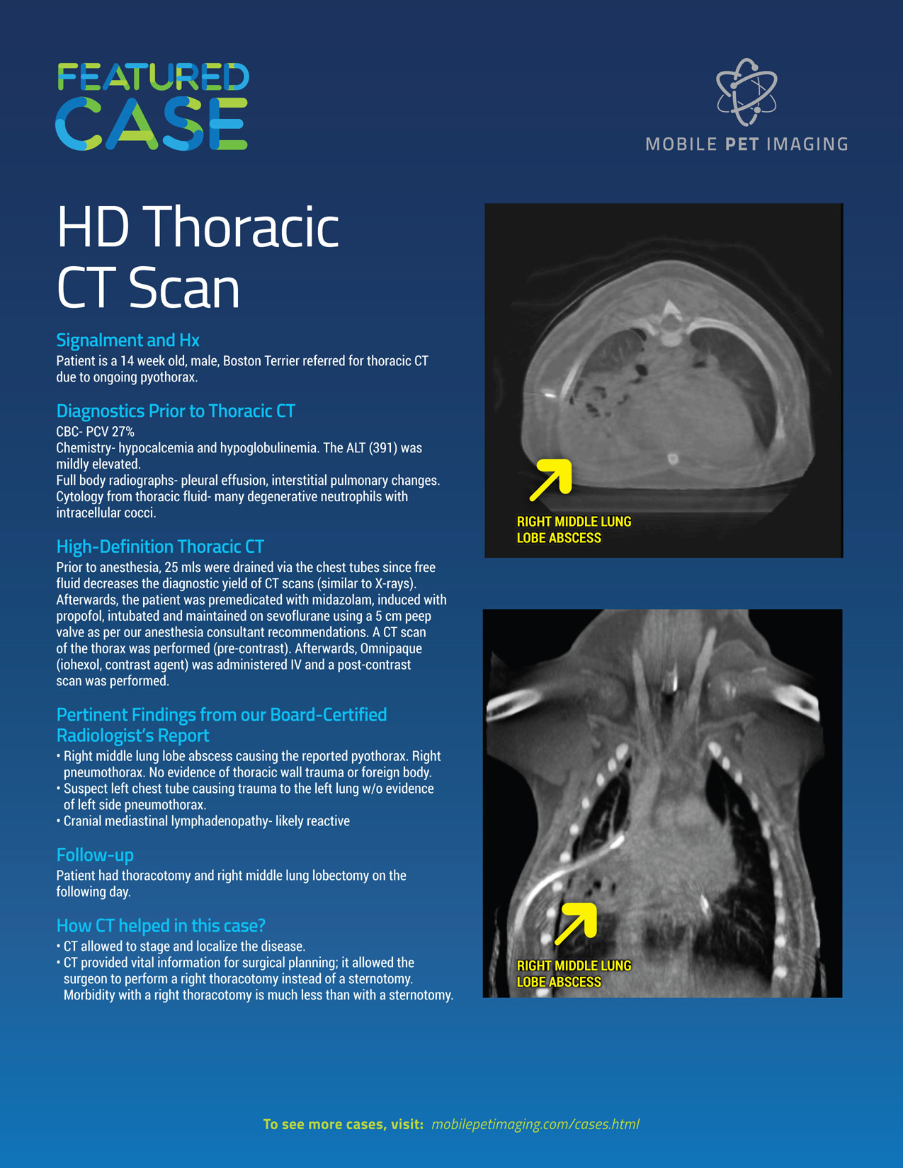 HD CT Abdomen